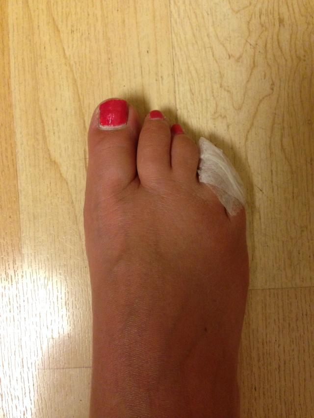 Michelle Minero's Toe
